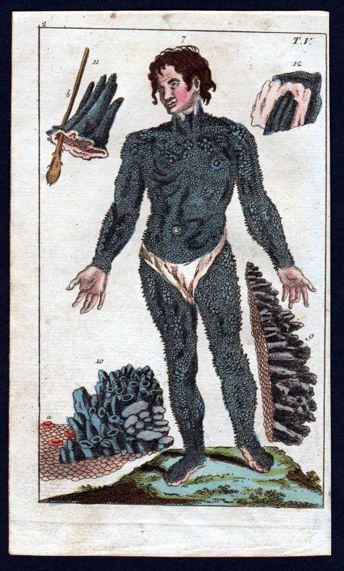 1800 Ichthyiose Ichthyosis hystrix Anatomie anatomy Medizin medicine Kupferstich