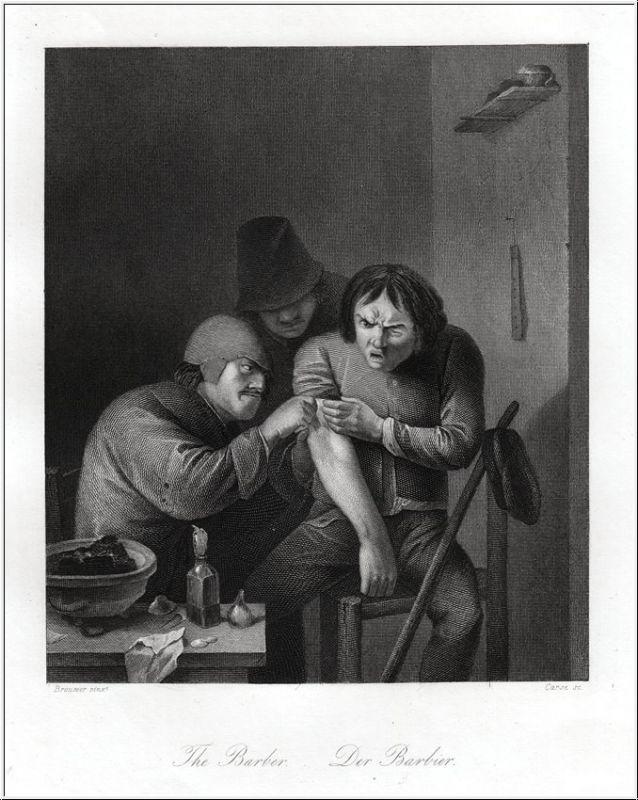 Barbier beim Aderlass. Stahlstich um 1850
