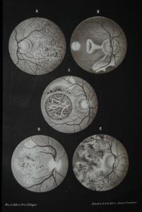 Stellwag von Carion – Augenheilkunde – Wien 1861 - Illustriert