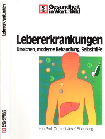 Ärztlicher Ratgeber - Lebererkrankungen - Ursachen, moderne Behandlung, Selbsthilfe Gesundheit in Wort & Bild