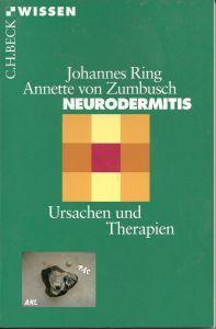 Neurodermitis, Ursachen und Therapie, Ring, Zumbusch
