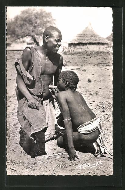 AK Tchad, Ventouse indigène, Saugbehandlung in Afrika, Medizin