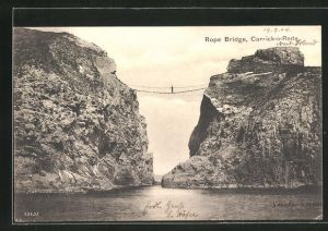 AK Carrick-a-Rede, Rope Bridge