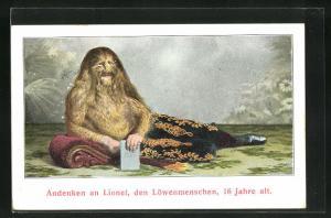 AK Lionel der Löwenmensch im Alter von 16 Jahren
