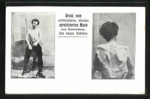 AK Gruss vom weltberühmten, lebenden versteinerten Mann aus Rümänien