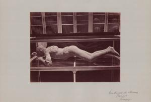 Fotografie Fotograf unbekannt, Ansicht Pompeji, Abguss einer verstorbenen Person aus Pompeji im Museum, 42 x 31cm