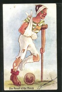 Künstler-AK Fussball, Mann an Krückstock mit Bandagen und Gipsbein neben Ball, The Result of the Match